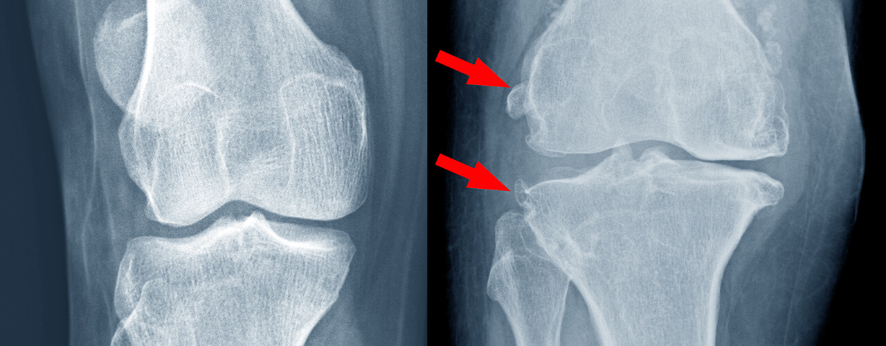 Total Joint Replacement Midlothian, VA